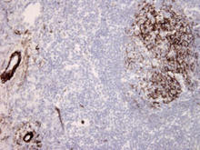 Frozen section of human tonsil tissue is stained with C5b-9 Complement Antibody (Cat. No. 250201) used at 1:10 dilution.