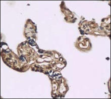 TLR4 staining in human placenta. Paraffin-embedded human placenta is stained with TLR4 Antibody (Cat. No. 251111) used at 1:200 dilution.