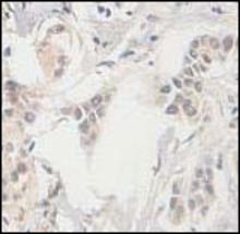 Wee1 staining in human breast carcinoma. Paraffin-embedded human breast carcinoma is stained with Wee1 Antibody (Cat. No. 252157) used at 1:100 dilution.